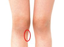 膝 の 内側 の 痛み